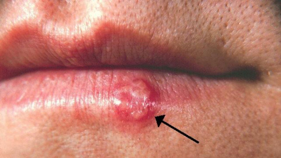 Herpes Question and Answers